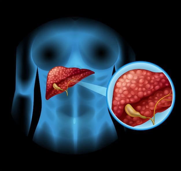 Diagrama de esclerosis en detalle