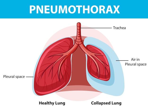 Diagrama de neumotórax con pulmón colapsado y pulmón sano
