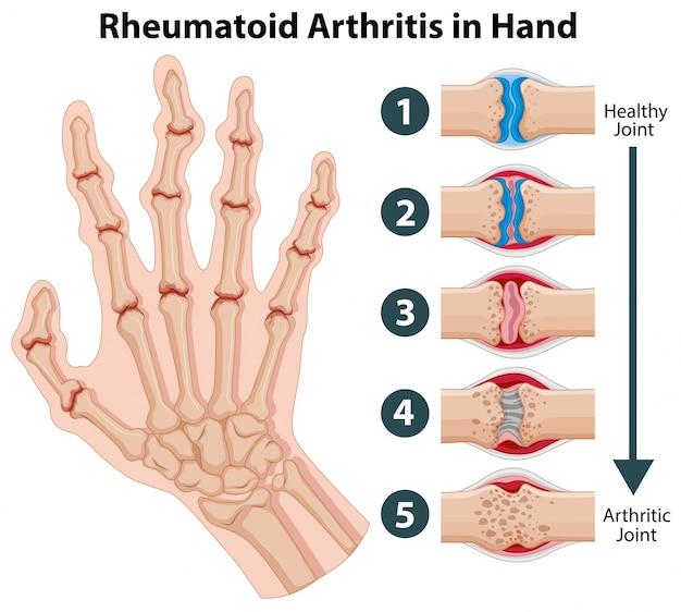 Diagrama que muestra la artritis reumatoide en una mano