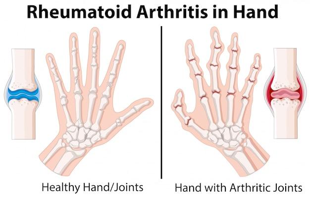 Diagrama que muestra la artritis reumatoidea en la mano