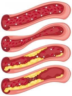 Diagrama que muestra el coágulo de sangre en las venas humanas