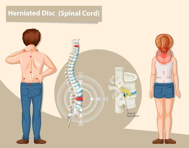 Diagrama que muestra la hernia de disco en humanos.