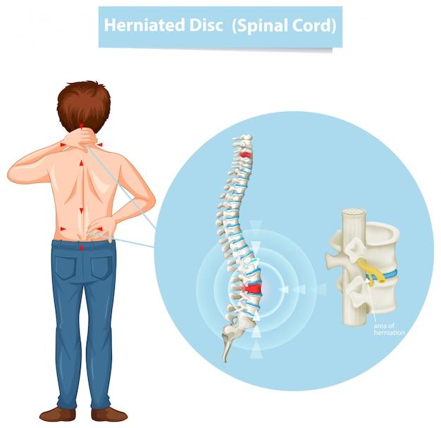 Diagrama que muestra hernia de disco