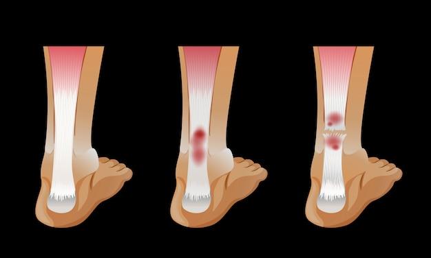 Diagrama que muestra hueso roto en el pie humano