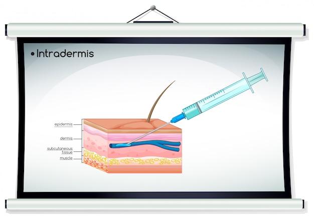 Diagrama que muestra la inyección de intradermis