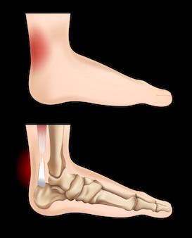 Diagrama que muestra la lesión del tendón