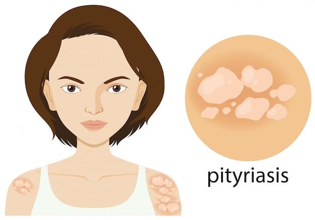 Diagrama que muestra a una mujer con pitiriasis