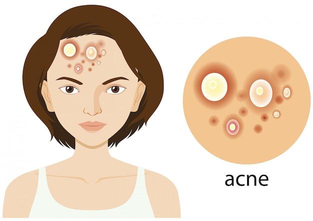 Diagrama que muestra a la mujer con problemas de acné