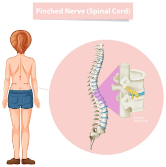 Diagrama que muestra el nervio pinzado
