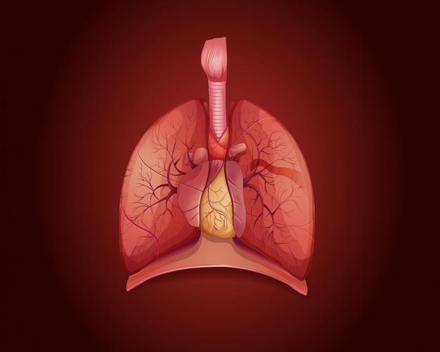 Diagrama que muestra los pulmones con enfermedad