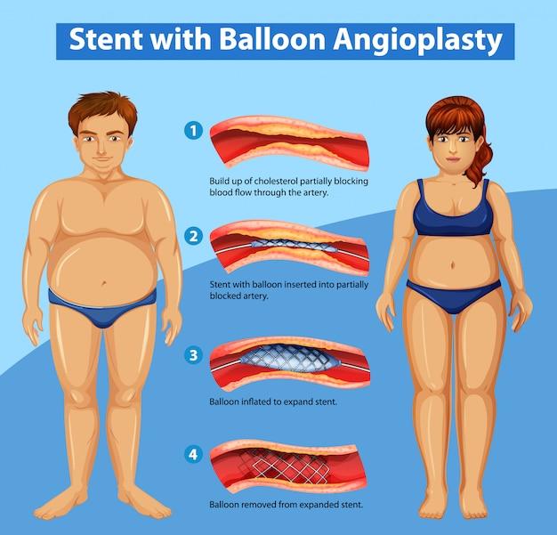 Diagrama que muestra stent con angioplastia con balón