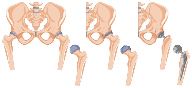 Diagrama que muestra el tratamiento del hueso de la cadera