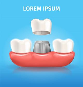 Diente corona realista vector dental poster