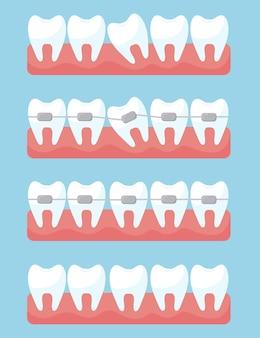 Diente con juego de aparatos de ortodoncia