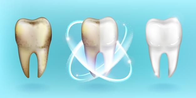 Diente limpio y sucio, blanqueamiento o limpieza de dientes