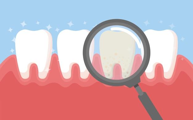 Diente con lupa. instrumentos de odontología y dientes blancos limpios, higiene bucal, limpieza de dientes, ilustración