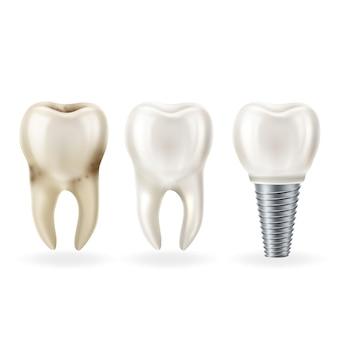 Diente sano realista, diente con caries e implante dental con tornillo.