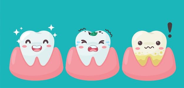 Los dientes y las encías de dibujos animados dentro de la boca están contentos con el problema de las caries. hay placa en los dientes.