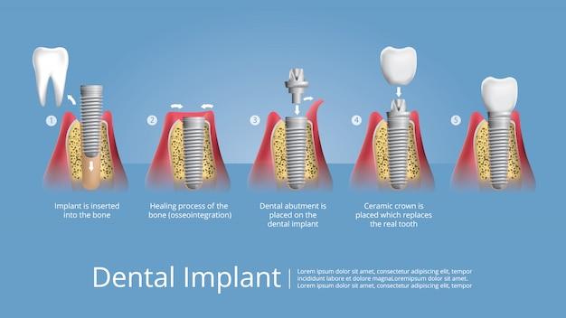 Dientes humanos e implante dental ilustración vectorial