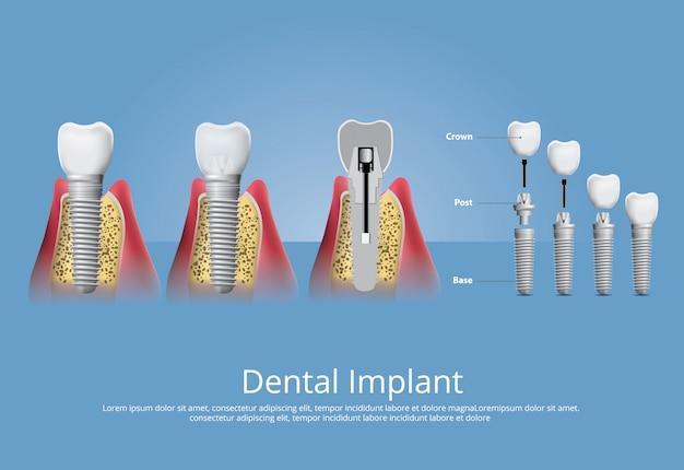 Dientes humanos e implantes dentales ilustración vectorial