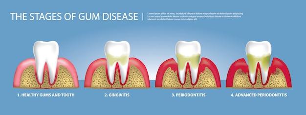Dientes humanos etapas de la ilustración de la enfermedad de las encías
