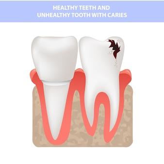 Dientes realistas, dientes sanos y caries, sección transversal de las encías