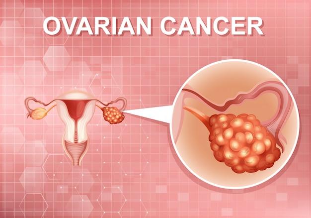Diseño de carteles para el cáncer de ovario humano en el cuerpo humano