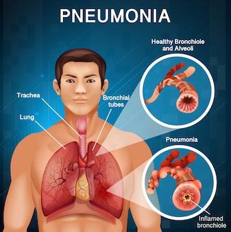 Diseño de póster para neumonía con pulmones malos en el cuerpo humano