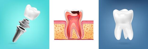 Diseño realista con ilustración de anatomía del diente humano