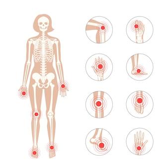 Dolor en el cuerpo humano femenino. silueta de esqueleto de mujer.