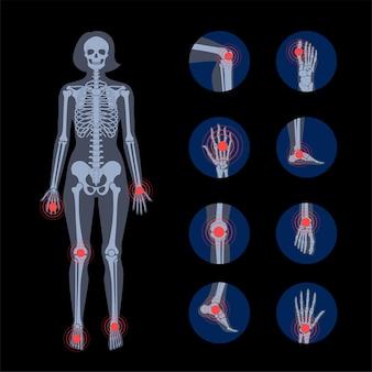 Dolor en el cuerpo humano. silueta de esqueleto femenino.