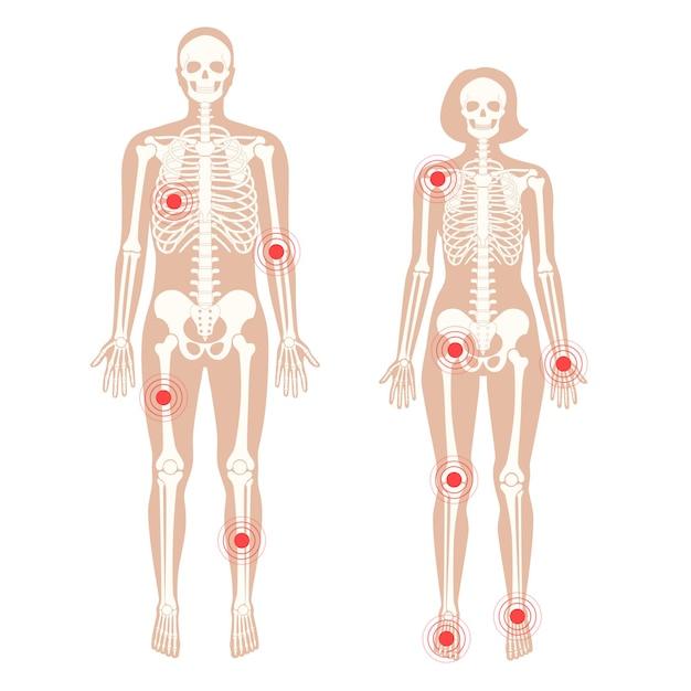 Dolor en el cuerpo humano. silueta de esqueleto masculino y femenino.