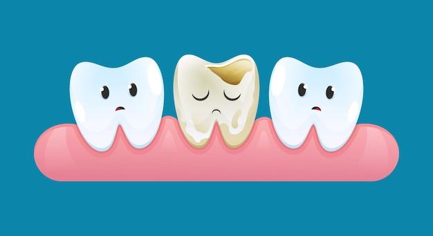 Dos dientes tristes en las encías miran un diente con caries.