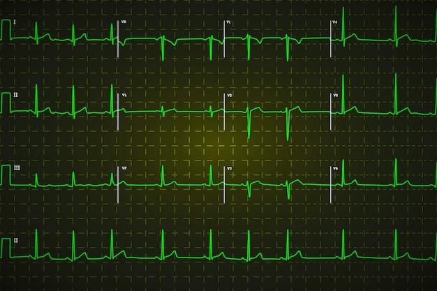 Electrocardiograma humano típico, gráfico verde brillante sobre fondo oscuro