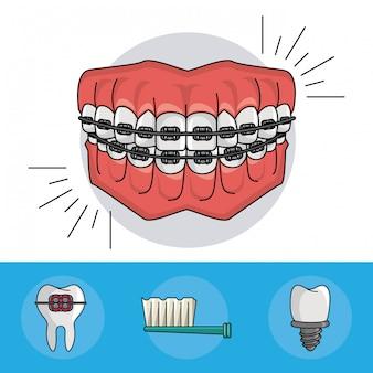 Elementos de aparatos dentales