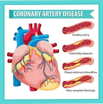 Enfermedad de las arterias coronarias para la educación sanitaria infografía
