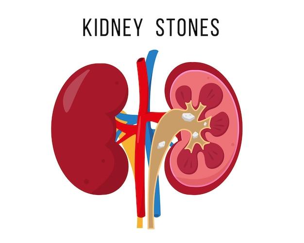 Enfermedad de cálculos renales. anatomía de los riñones humanos por dentro y por fuera aislado en blanco