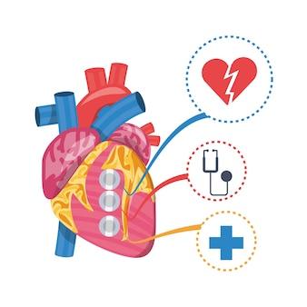 Enfermedad del corazón a la prevención del infarto