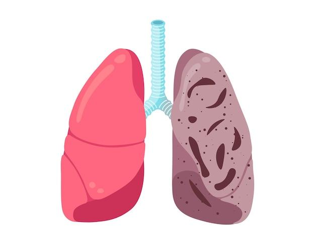 Enfermedad de la infección de tuberculosis de los pulmones insalubres enfermos sistema respiratorio humano tubérculo de órganos internos