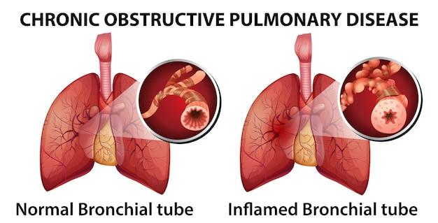 Enfermedad pulmonar obstructiva crónica
