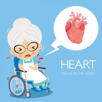 Enfermedades del corazón de la cardiología en la abuela.