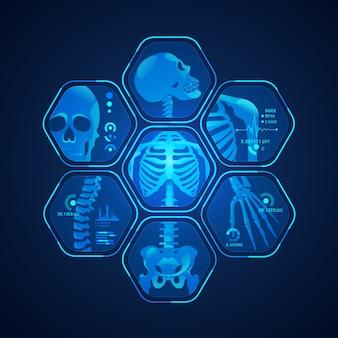 Escaneo de esqueleto
