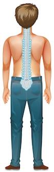 Espalda de hombre humano con dolor de espalda