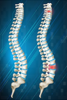 Espinas humanas con rojo inflamado en uno