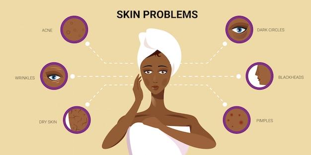 Espinillas de la piel facial acné diferentes tipos de mujer afroamericana cara poros comedones cosmetología problemas de cuidado de la piel concepto retrato plano horizontal