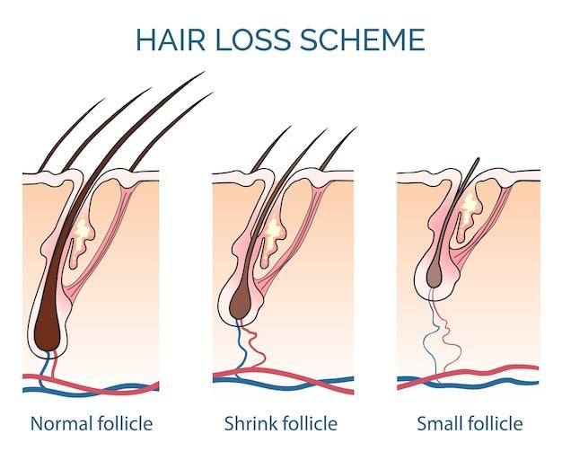 Esquema de caída del cabello. pérdida de cabello, problema de crecimiento del cabello, cabello sano. ilustración vectorial