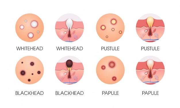 Establecer diferentes espinillas de la piel facial tipos de acné poros comedones cosmetología problemas de cuidado de la piel concepto plano horizontal