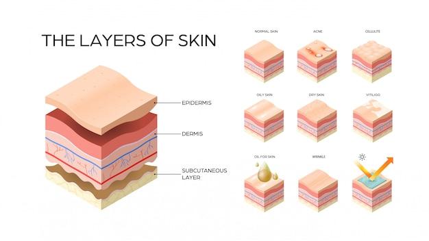 Establecer diferentes tipos de capas de piel sección transversal de la estructura de la piel humana concepto médico cuidado de la piel horizontal plana