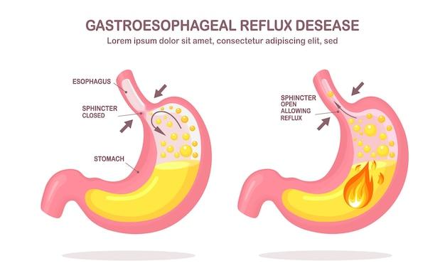 Estómago humano. enfermedad por reflujo gastroesofágico. erge, acidez estomacal, infografía gástrica. el ácido sube al esófago.