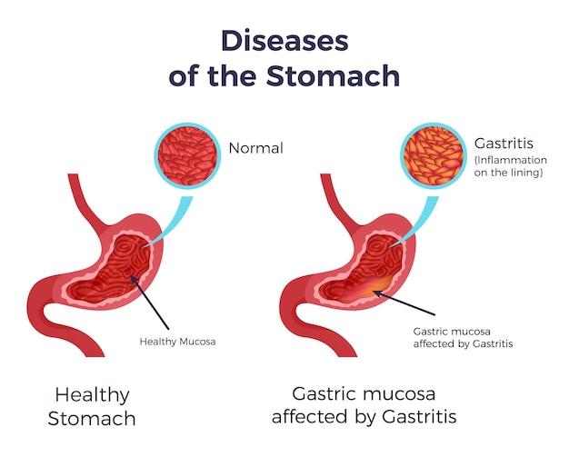 Estómago humano normal en comparación con gastritis afectada, revestimiento de mucosa inflamada inflamada, conjunto plano, póster infográfico